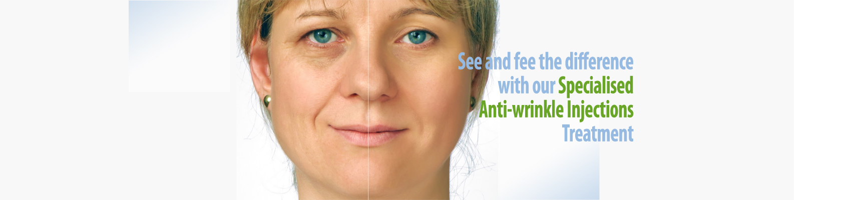 Feel and See the Difference Specialised Anti-wrinkle Injections Treatment at Melbourne Anti-Wrinkle Injections