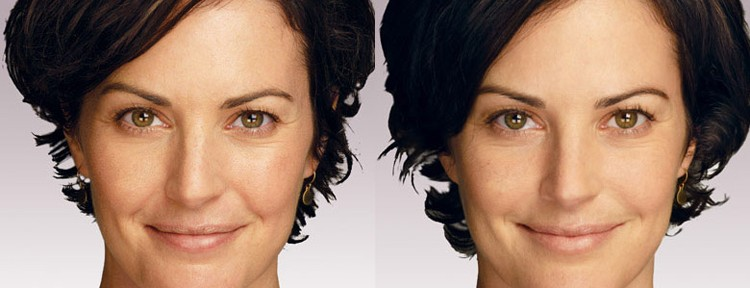 Melbourne Anti-Wrinkle Dermal Filler Injections on Eyebrows, Cheeks and Lip Areas