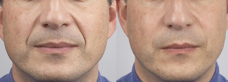 Botox Dermal Fillers Injections for mouth and nose fold areas at Melbourne Anti-wrinkle Injections Clinic