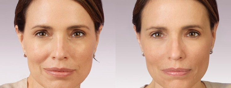 Melbourne Anti-Wrinkle Injections Dermal Fillers eyebrow lift and lip fillers