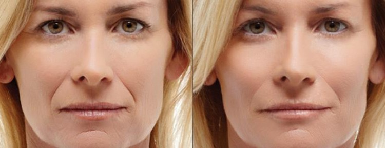 Lip Dermal Filler Injections at Melbourne Anti-Wrinkle Injections