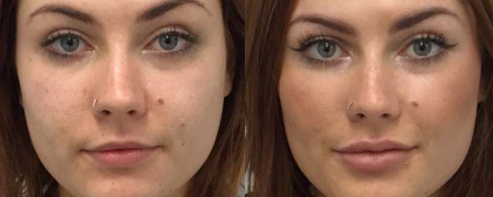 Results after Lip Filler Injections by Melbourne Anti-Wrinkle Injections