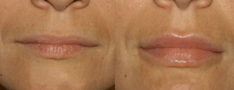 Lip Filler Injections Treatment using Dermal Fillers at our Melbourne Clinic