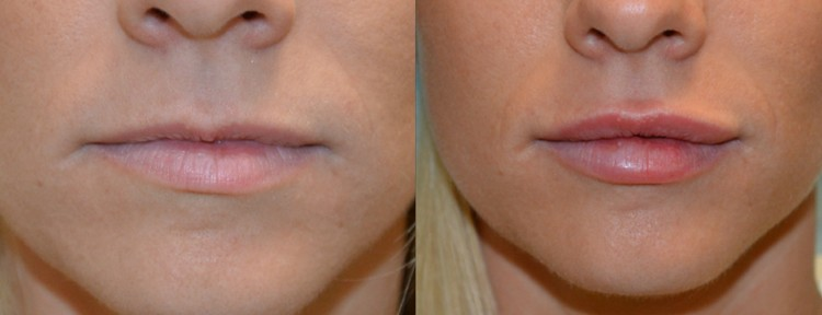 Lip Filler Injections with Dermal Filler at Melbourne Anti-Wrinkle Injections